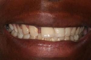Paciente de caso Dentista Low Cost
