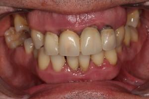 Paciente de Dentista Low Cost
