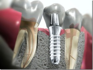 fotos-implantes-dentarios