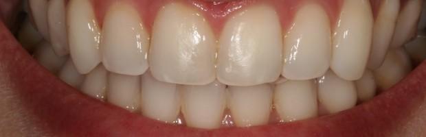 """Na Estética somos constantemente bombardeados com promessas muitas vezes não cumpridas. Saiba tudo sobre Branqueamento Dentário e aprenda a diferenciar o """"Trigo do Joio"""" para que o seu branqueamento seja um sucesso!"""