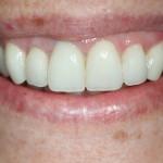 Reabilitação do sorriso