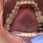 Reabilitação sobre implantes