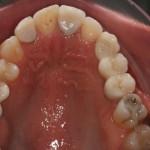 Implantes na região do 2o pre-molar e 1o molar superiores esquerdos