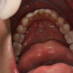 Perda do 1o molar inferior direito