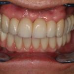 Reabilitação total sobre implantes (mantendo caninos superiores)