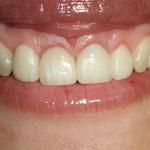 Estética branca (dentes) – Estética rosa (gengiva)