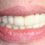 Rejuvenescimento do sorriso