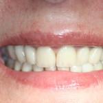 Reabilitação e rejuvenescimento do sorriso