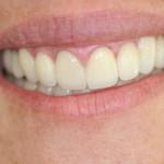 Estética branca (dentes) – Estética rosa (gengiva) – Oclusão