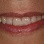 Correcção de diastemas (Espaços)