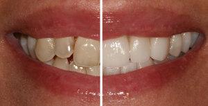 A Estética Dentária e a Reabilitação Oral sempre foram áreas que me apaixonaram e às quais dediquei muita da minha formação e prática clínica ao longo de 25 anos.