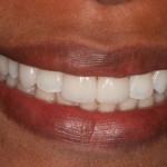 Pequenas Intervenções / Rotações Dentárias