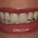 Correção de Imperfeições do Esmalte / Mini Lifting do Sorriso