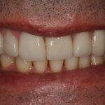 Reabilitação Oral e Lifting do Sorriso