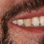 Implantes Maxilar Superior