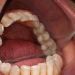 Reabilitação com Implantes e Doença Periodontal