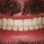 Reabilitação Oral / Mordida Cruzada Anterior