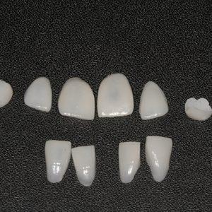 Facetas Dentárias de Cerâmica ou Porcelana