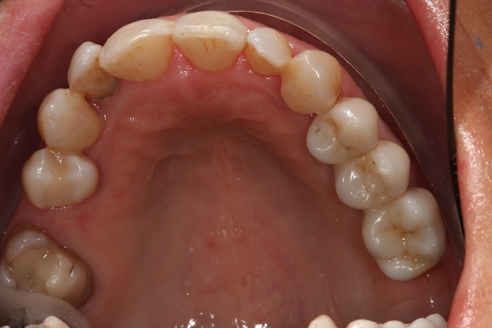 implantes reabilitacao-oral