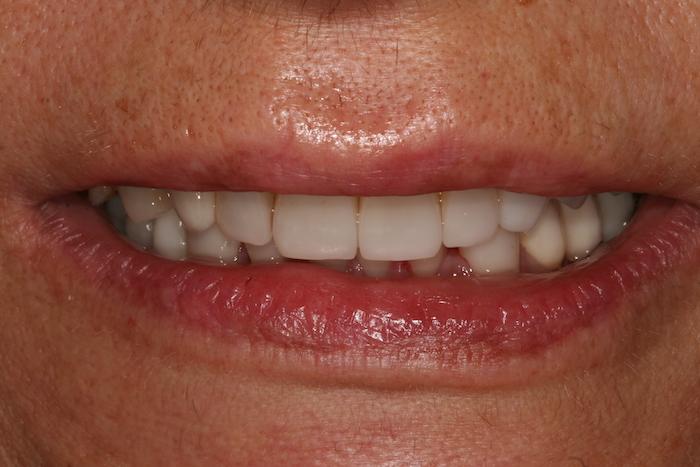 Reabilitação Oral e Rejuvenescimento do Sorriso