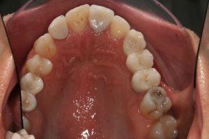 implantes|reabilitacao-oral