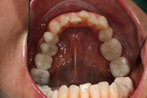 reabilitacao-oral