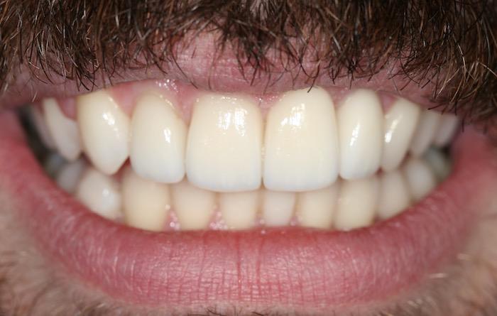 Correcção de Apinhamento Dentário com Facetas de Cerâmica