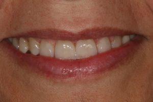 dentes-estetica|ortodontia