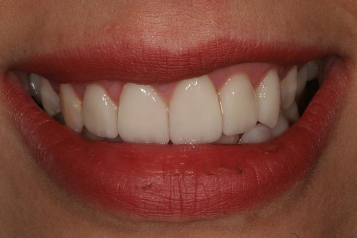 Correção de Apinhamento Dentário e Alterações daCor com Facetas de Cerâmica