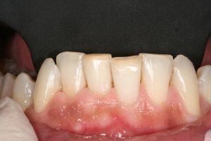 branqueamento-dentario