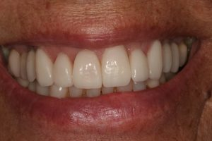 dentes-estetica|reabilitacao-oral