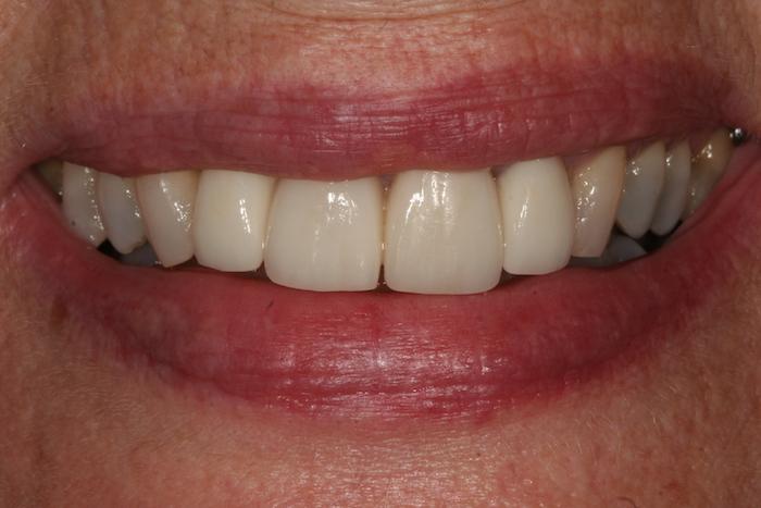 branqueamento-dentario|dentes-estetica|reabilitacao-oral