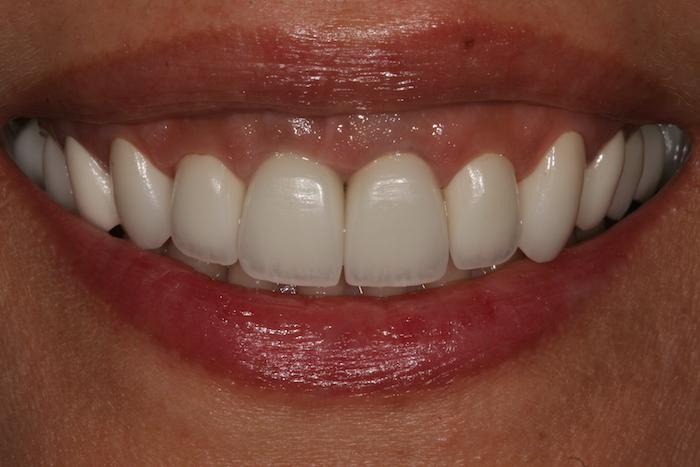 branqueamento-dentario|dentes-estetica