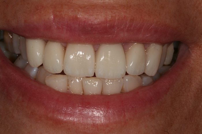 Correção de Apinhamento Dentário com Facetas de Cerâmica