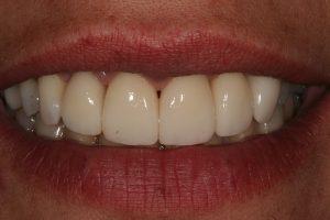 dentes-estetica