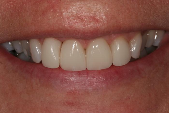 Correcção de Apinhamento Dentário e Lifting do Sorriso com Facetas de Cerâmica