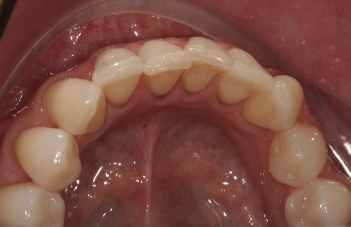 Correção de Apinhamento Dentário dos Incisivos Inferiores com Alinhadores Invisíveis