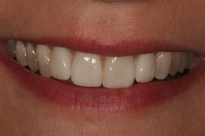 Alinhamento Dentário e Lifting do Sorriso com Facetas de Cerâmica