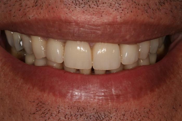 dentes-estetica|implantes