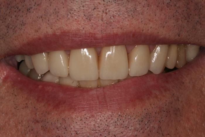 dentes-estetica|implantes|reabilitacao-oral