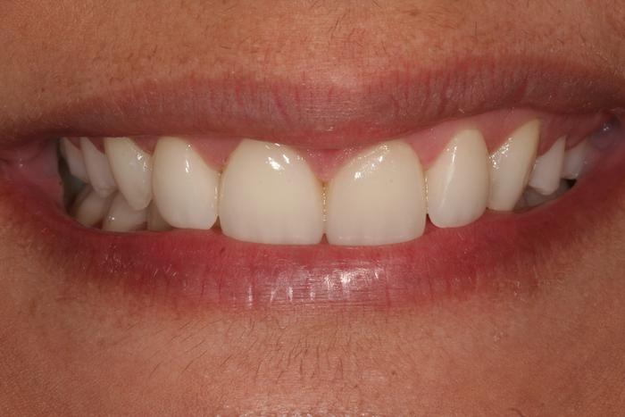 Alinhamento Dentário e Rejuvenescimento do Sorriso com Facetas de Cerâmica