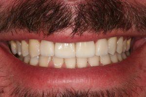 branqueamento-dentario|dentes-estetica|ortodontia