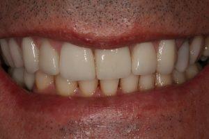 branqueamento-dentario|dentes-estetica|implantes|reabilitacao-oral