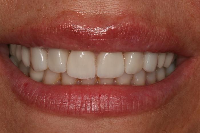 Lifting do Sorriso / Reabilitação Oral