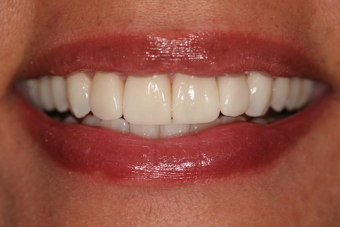 Rejuvenescimento do Sorriso e Cirurgia de Quisto