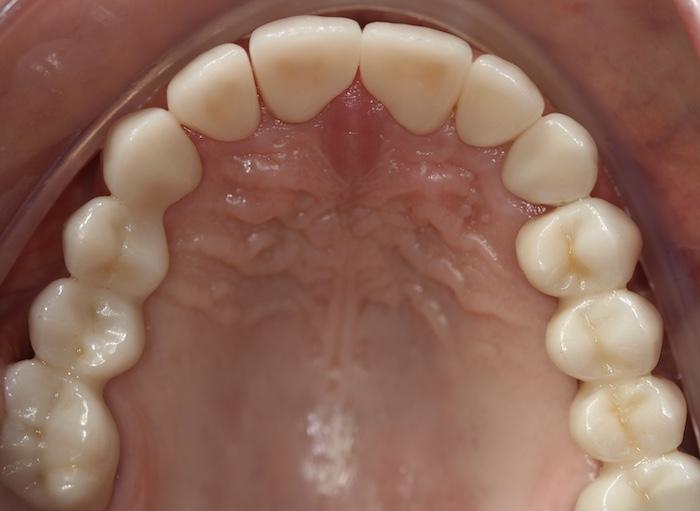 Reabilitação Oral Fixa em Paciente com Bruxismo