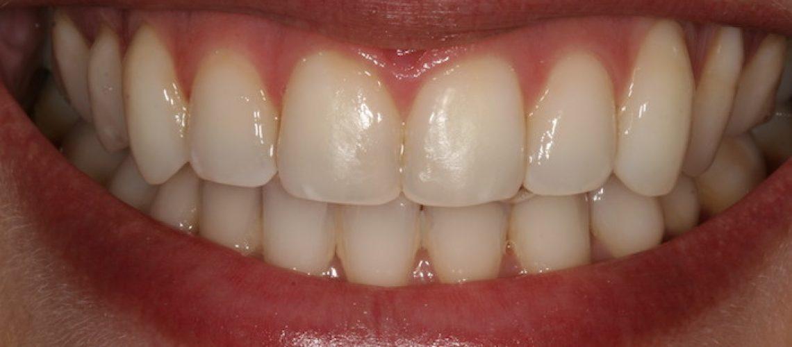 """Na Estética somos constantemente bombardeados com promessas muitas vezes não cumpridas. Saiba tudo sobre Branqueamento Dentário e aprenda a diferenciar  o """"Trigo do Joio"""" para que o seu branqueamento dentário seja um sucesso!"""