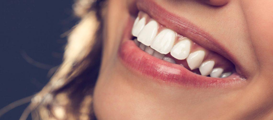 Preço das facetas dentárias de porcelana ou cerâmicaexplicado
